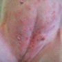 Atopic dermatitis + secondary infection